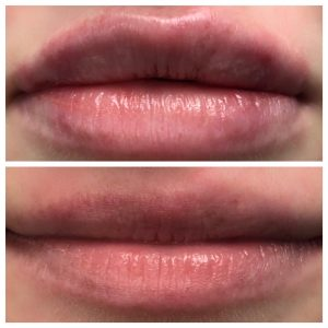Botox + Lip Fillers